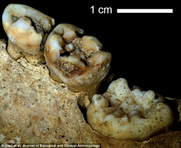 2EB9811A00000578-3330186-The_experts_found_so_called_Hutchinson_s_teeth_with_central_notc-a-75_1448285759928