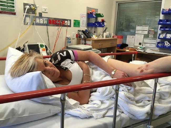 После нападения кенгуру австралийке необходима замена грудных имплантов