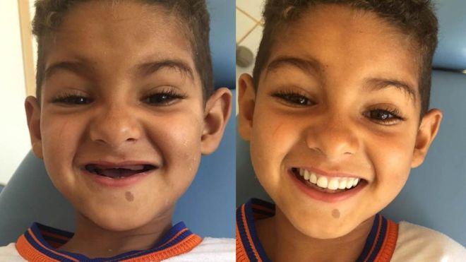Маленькое чудо из Бразилии: как врач научила ребенка улыбаться