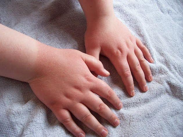 Цыпки у детей на теле фото