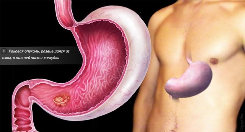 Лечение рака желудка в Израиле