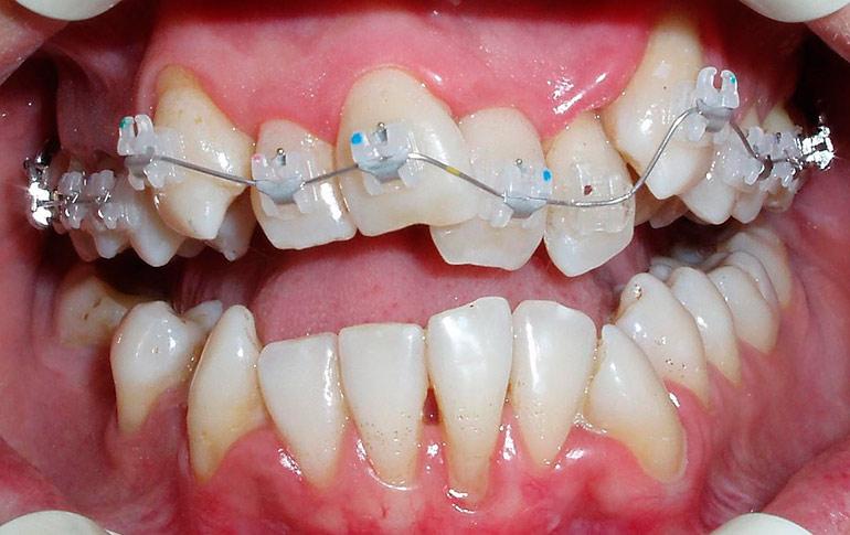 Брекеты в детской стоматологии