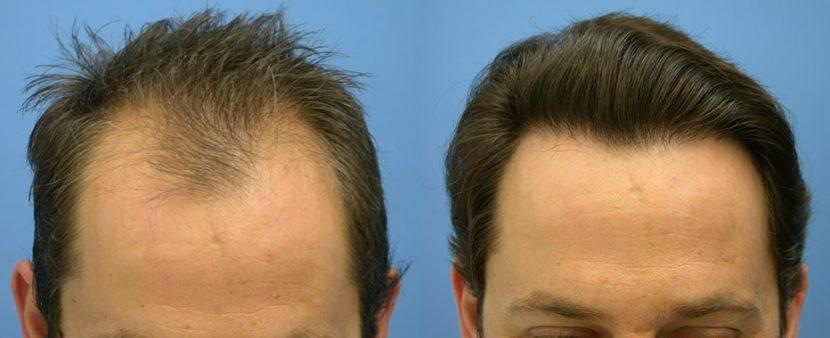 О пересадке волос в Турции