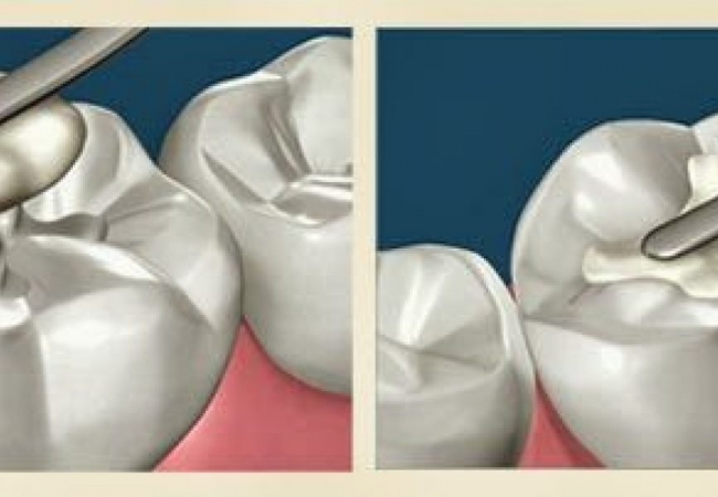 Услуги стоматолога. Эндодонтические инструменты для пломбирования корневых каналов